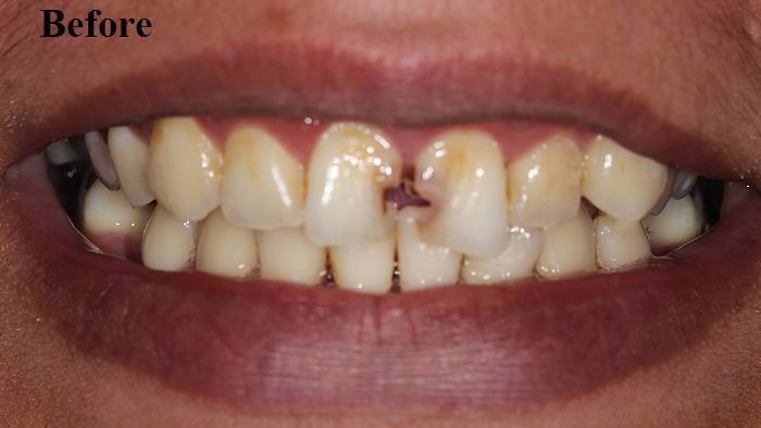 Dr. Alemseged Missonne, DDS Blog   Dentist Houston TX