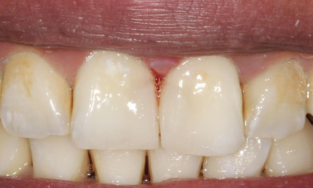 Dr Alemseged Missonne Dds S Smile Gallery Tooth