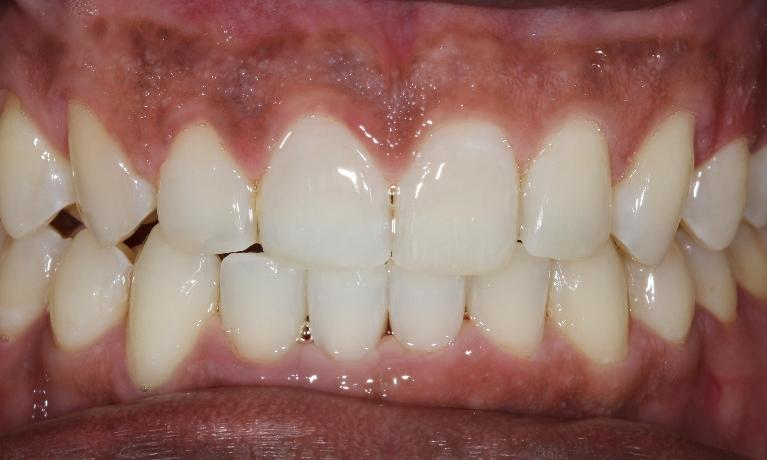 Six-Month-Smile-Braces-and-Whitening-After-Image