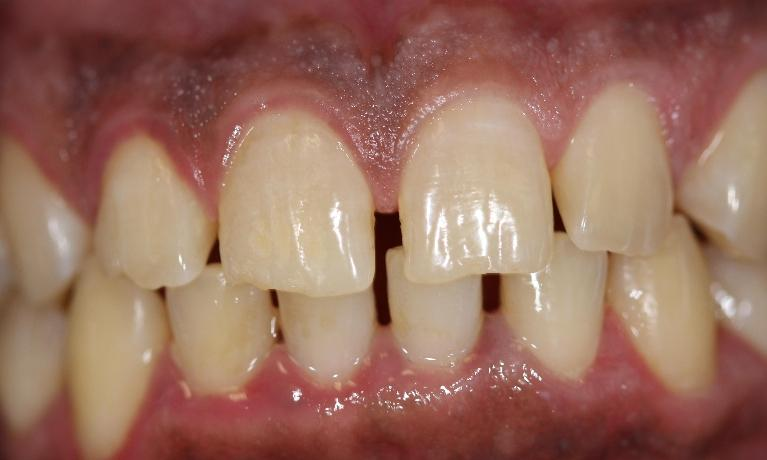 Six-Month-Smile-Braces-and-Whitening-Before-Image