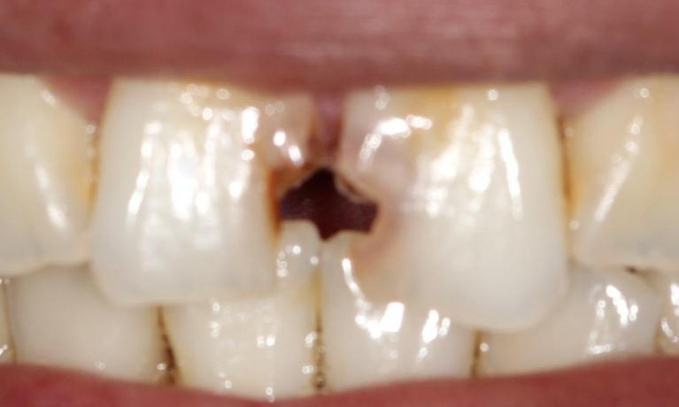 Tooth-Colored-Filling-Before-Image
