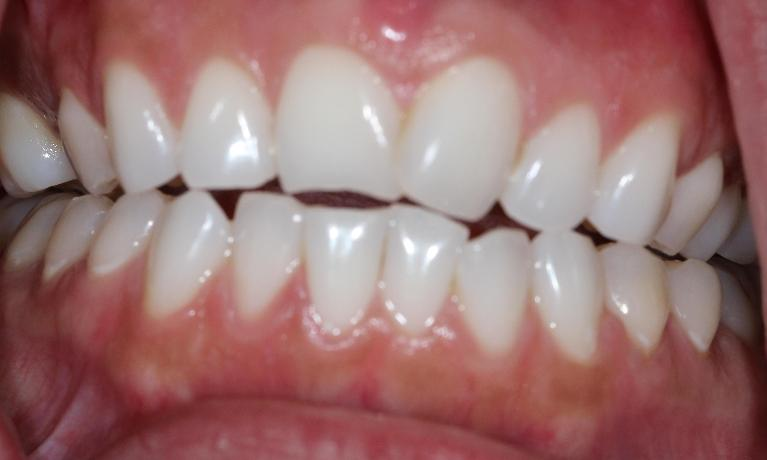 Adult-Braces-Before-Image
